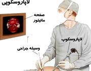 لاپاروسکوپی؛ عمل جراحی با کمترین برش
