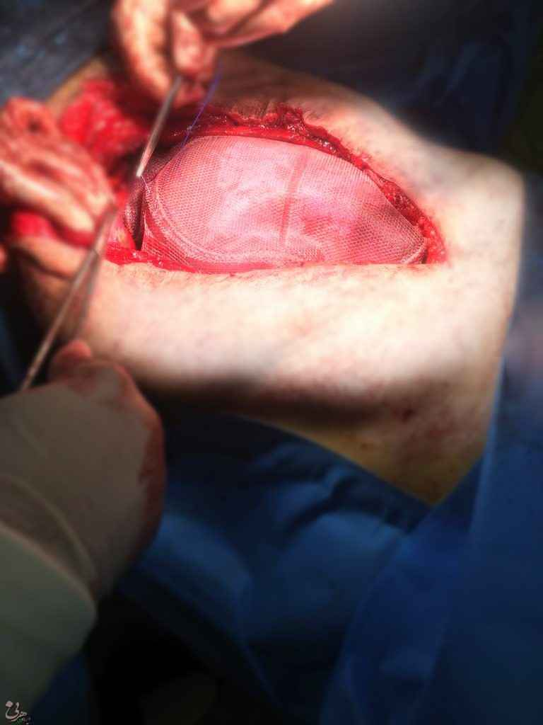 بیمار آقای 54 ساله که قبلا به دلیل تومور روده بزرگ توسط یکی از همکاران تحت عمل جراحی شکم (لاپاراتومی) قرار گرفت بود