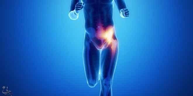 جراحی فتق کشاله ران و ورزش