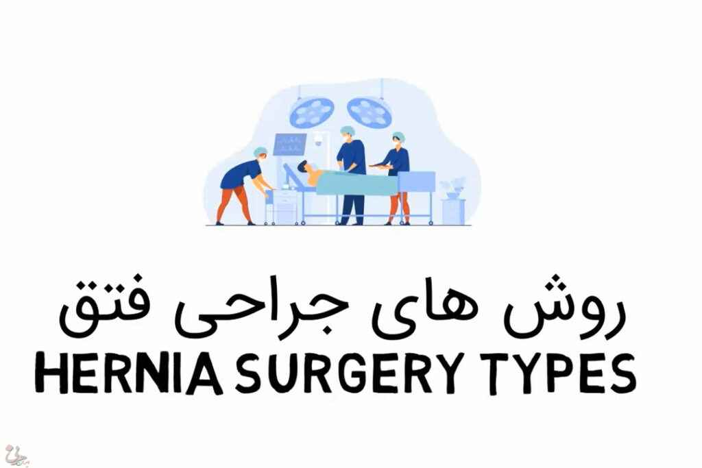 روش های جراحی فتق