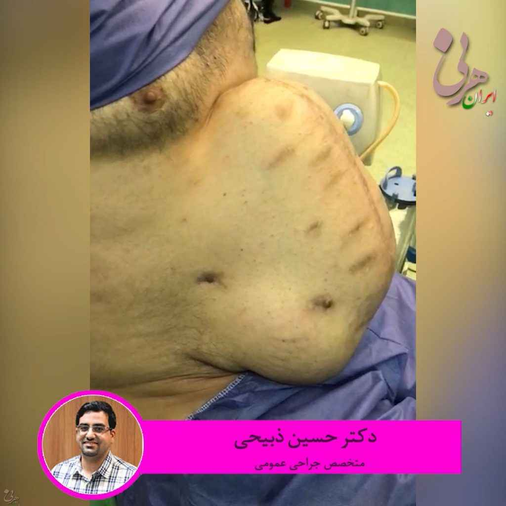 آقای ۴۳ ساله که به دلایل مختلف چند بار تحت عمل جراحی شکم قرار گرفته و فتق بسیار بزرگ شکمی داشته است